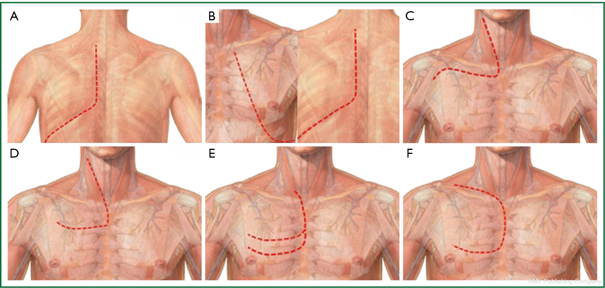 Can vena cava syndrome be correlated to a Pancoast-Tobias tumour?