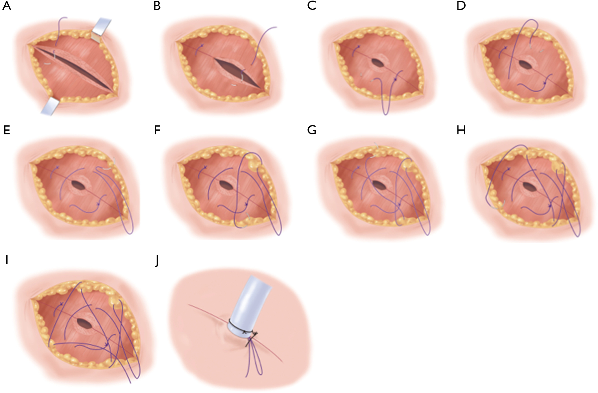 A novel technique for chest drain removal using a two layer