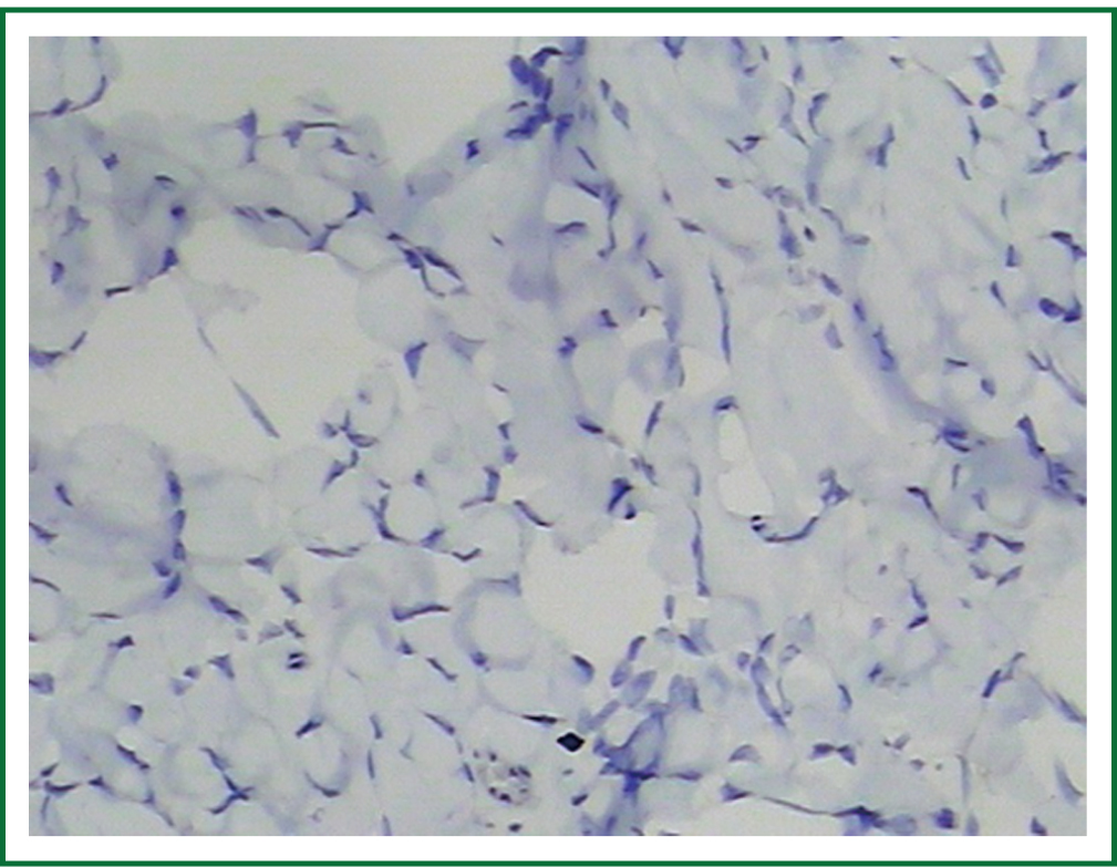 Solitary fibrous tumors of pleura and lung: report of twelve cases