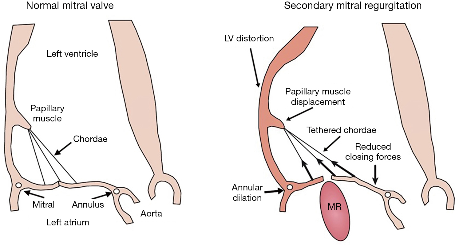 Multimodality Imaging Assessment Of Mitral Valve Anatomy In Planning