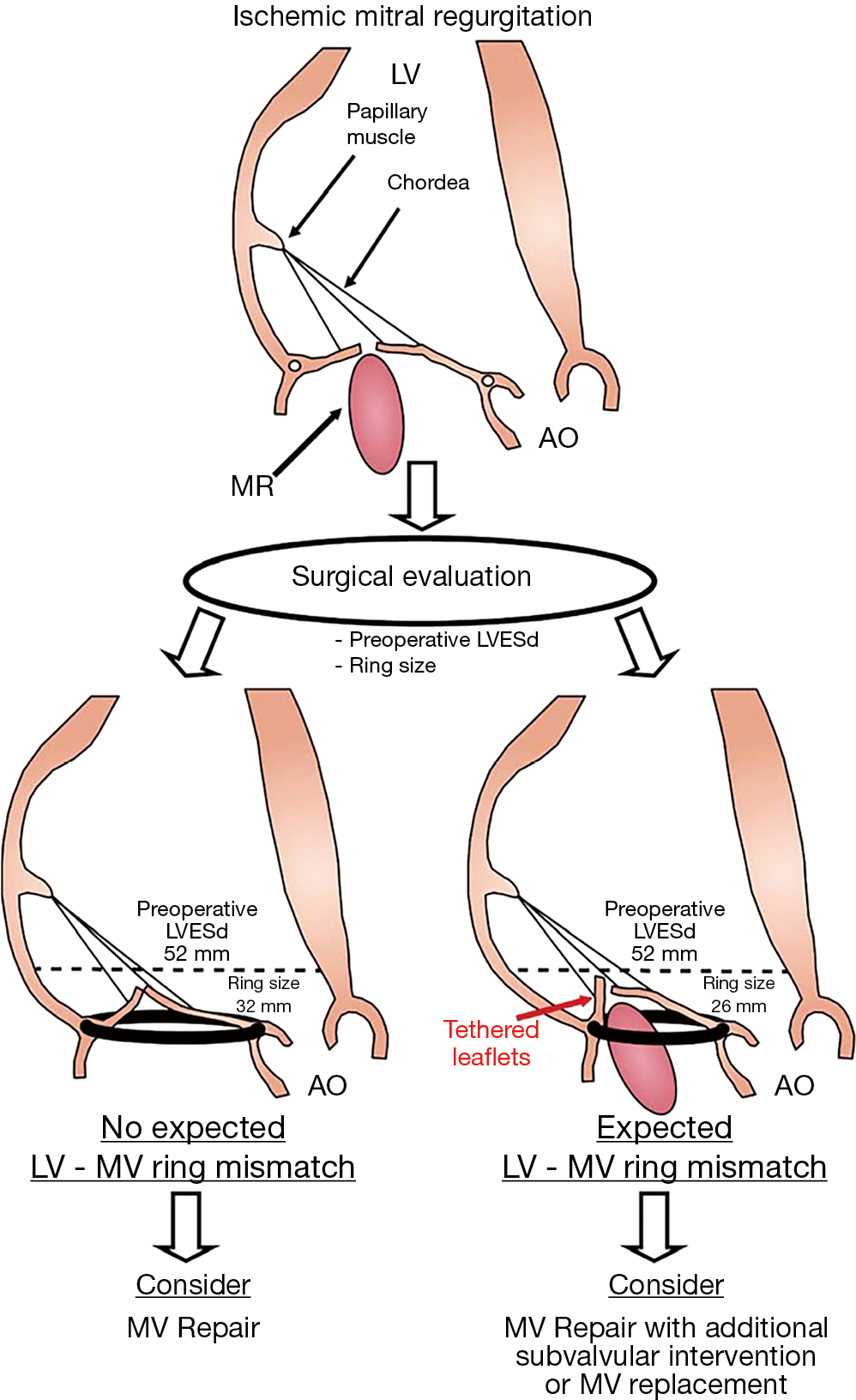 Multimodality imaging assessment of mitral valve anatomy in planning ...