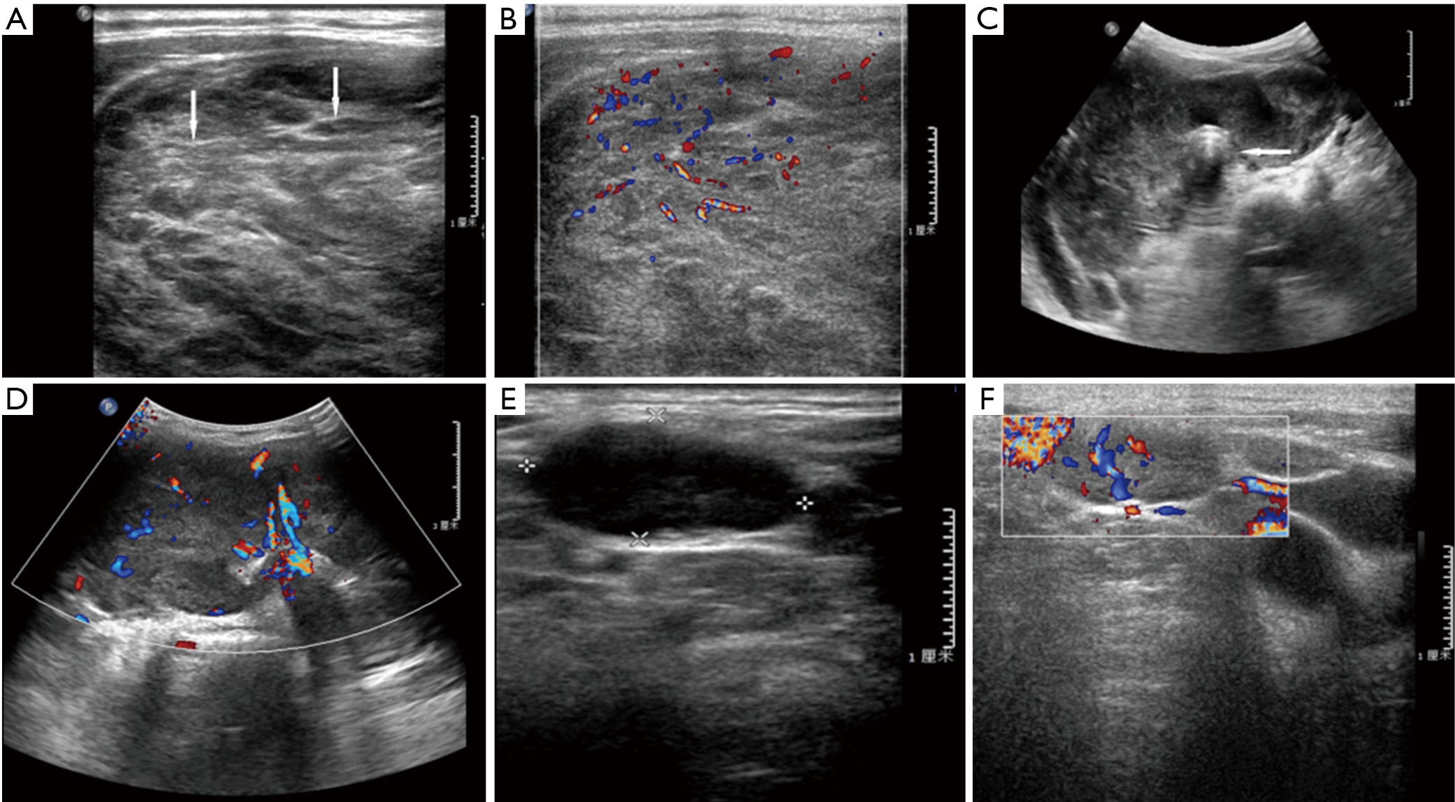 Comparison Of Sonographic Characteristics Of Primary Thyroid