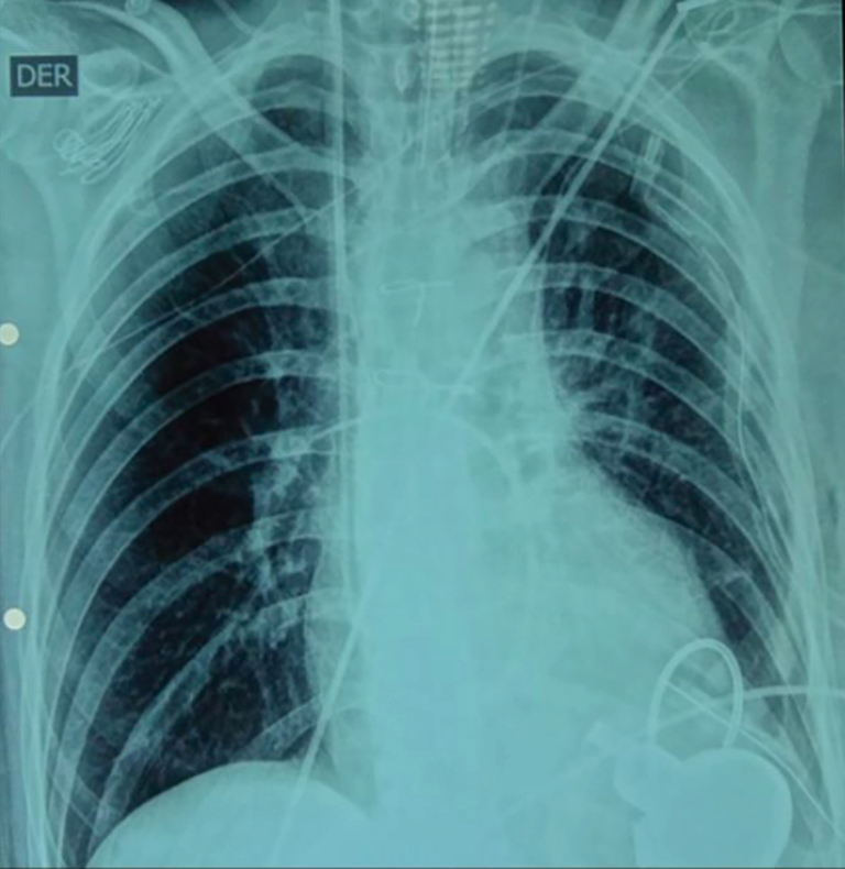 Left ventricular assist device (LVAD) program in Chile: first ...