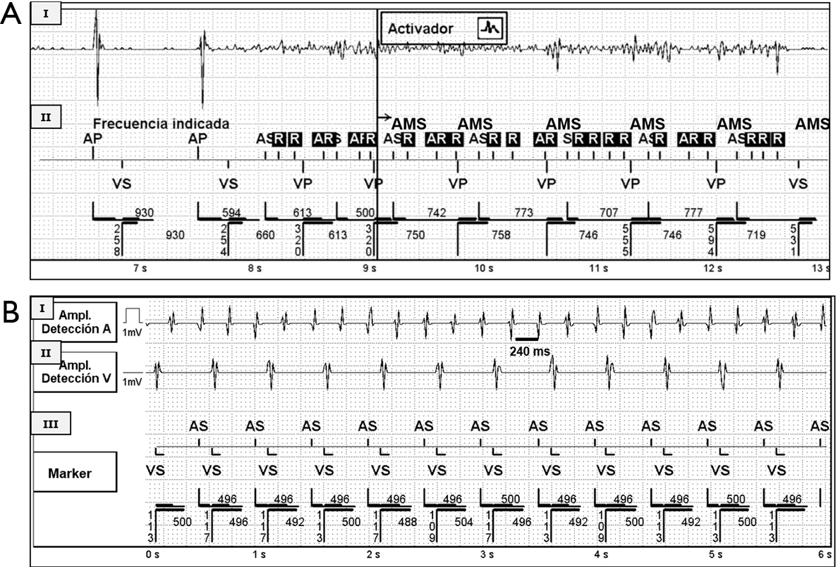 How to recognize silent atrial fibrillation in pacemakers