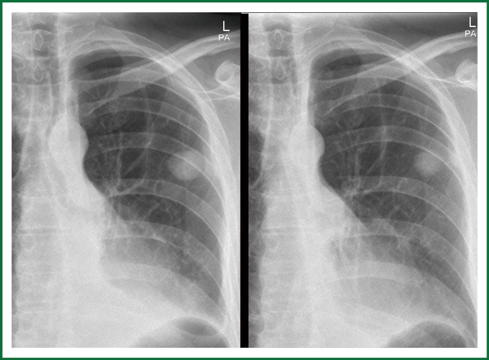 Figure 6 Cxr Posterior Anterior Pa On The Left A New Spn In The Left Upper Lobe Size 2 Cm Smooth Vague Borders No Calcifications Ttnb Positive For
