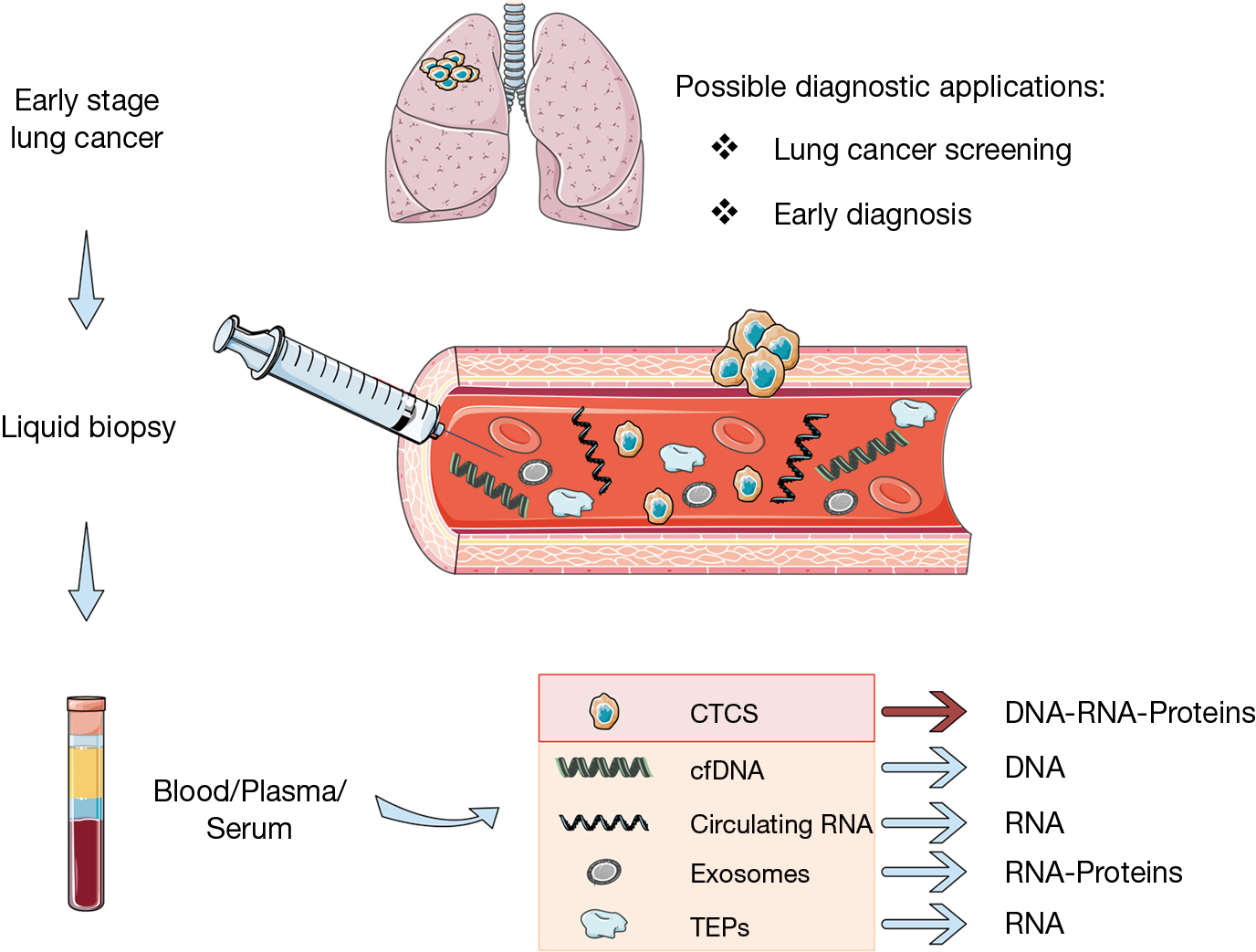 Liquid biopsy for lung cancer early detection - Santarpia - Journal