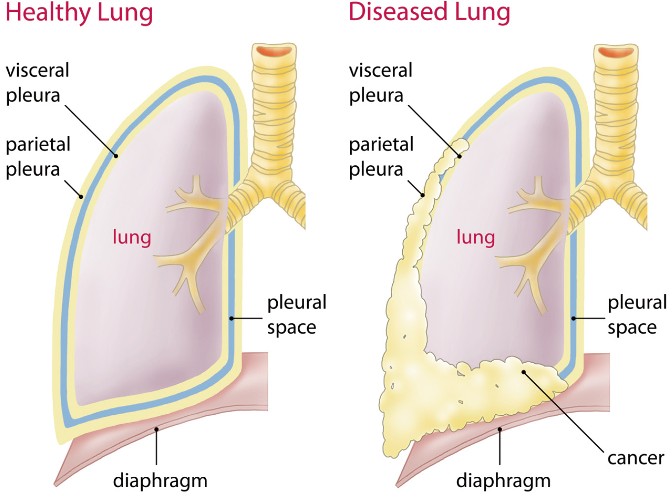 management of malignant pleural mesothelioma\u2014the european experienceintroductionother section