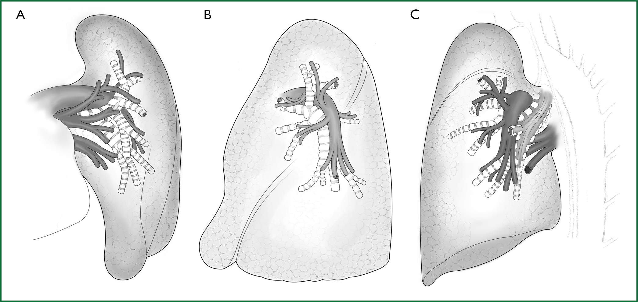 Thoracoscopic anatomic pulmonary resection - He - Journal of ...