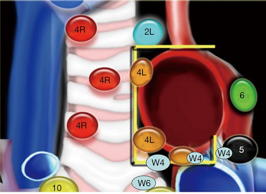 Insight into the differences in classification of mediastinal and ...
