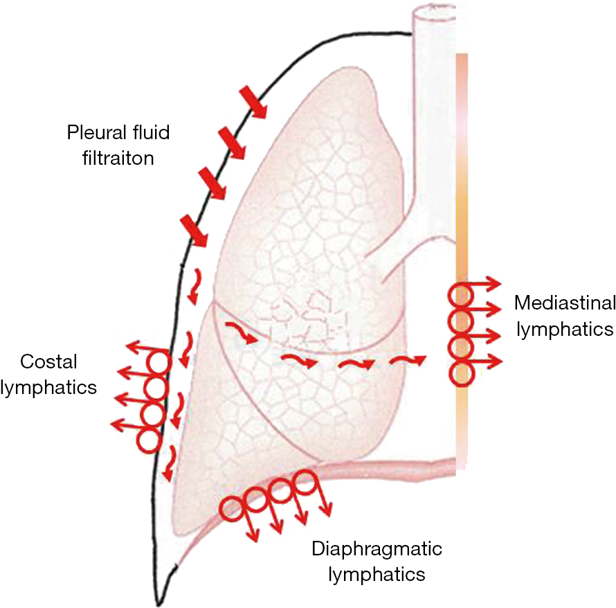 Air leak after lung resection: pathophysiology and patients ...