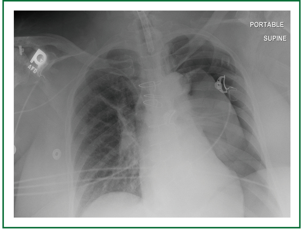 Pneumothorax, an underappreciated complication with an ...