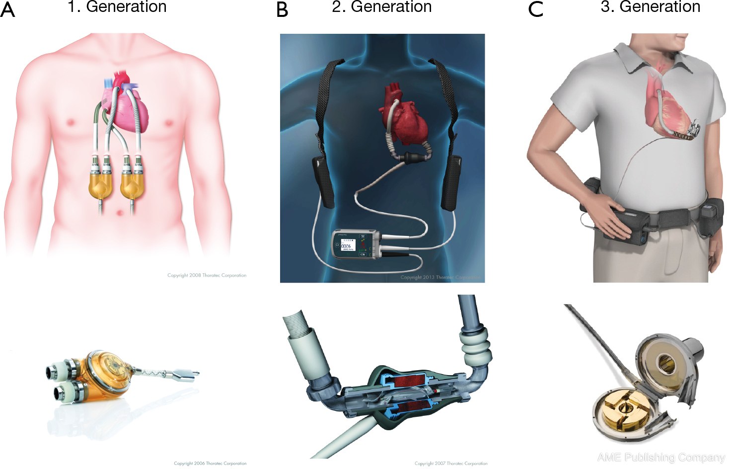 left ventricular assist devices current state and perspectives